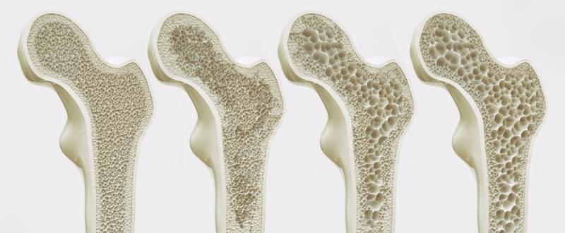 Knogleskørhed skal behandles med medicin, kalktilskud og træning. Fysioterapeuterne på Aarhus Rygklinik hjælper dig med at lave det rigtige træningsprogram til knogleskørhed.