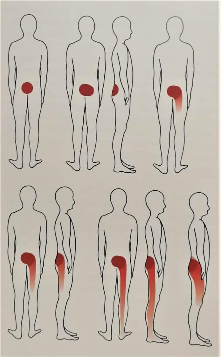 Aarhus Rygklinik behandler iskiassmerter. Har du udstrålende symptomer kan fysioterapeuterne hjælpe dig med rådgivning og genoptræning