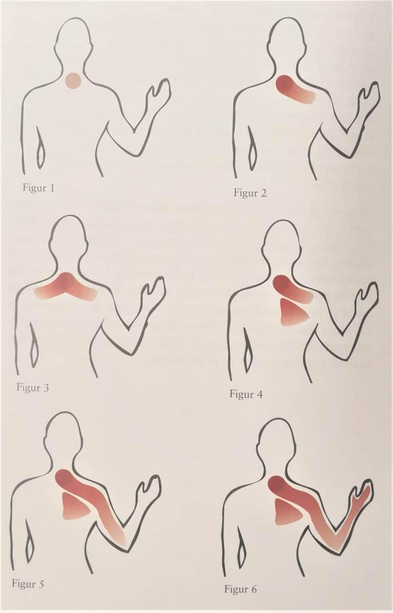 Symptomer på nakkesmerter